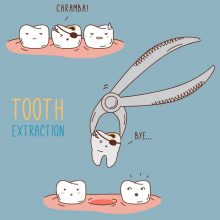 The Reasons Behind a Tooth Extraction